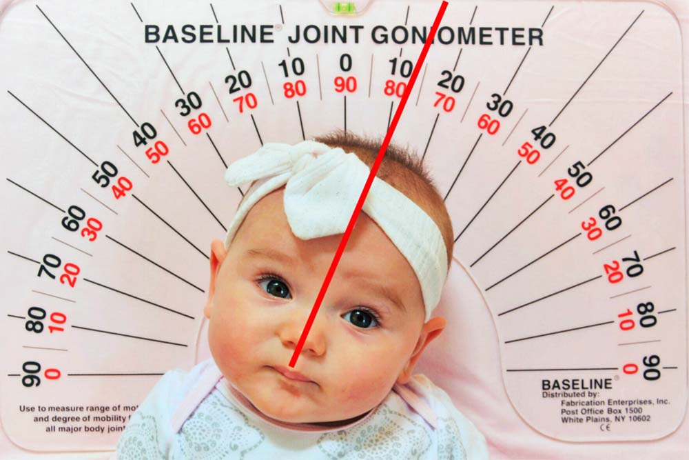Pediatric Physical Therapy - Baseline Joint Goniometer