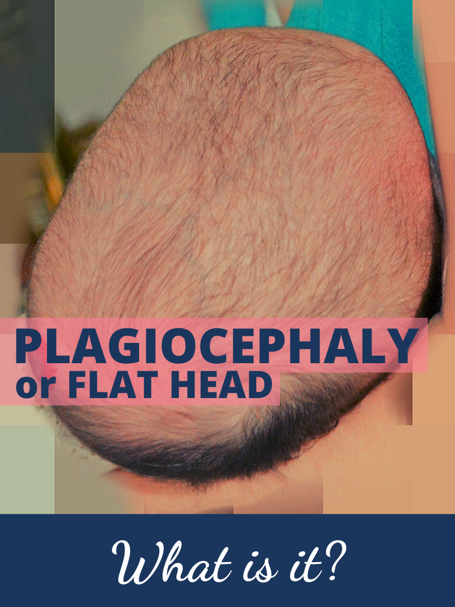 Plagiocephaly or Flat Head - Pediatric Physical Therapy