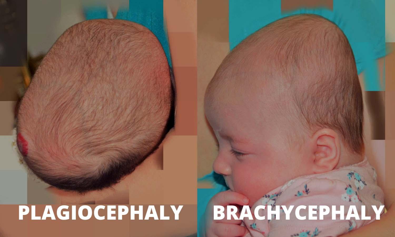 Plagiocephaly vs Brachycephaly Example by Pediatric Therapist Angela Marcotte