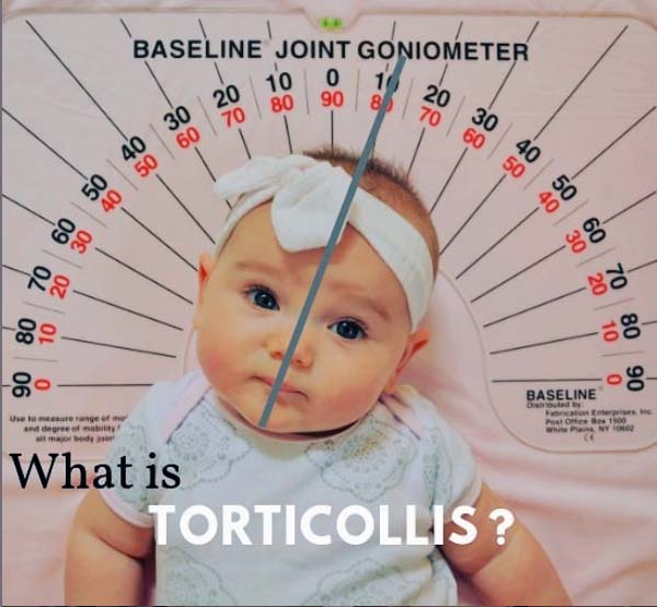 What is Torticollis by Pediatric Physical Therapist Angela Marcotte